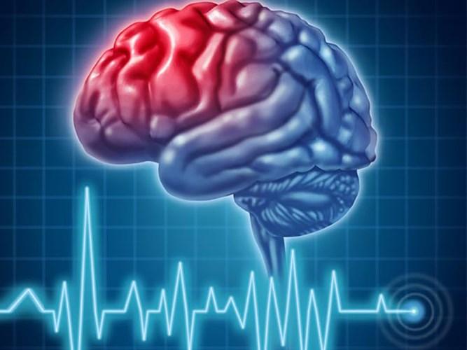Hạt điều giúp cải tiện chức năng của não